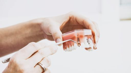 Dentist pulls teeth of man who left her for another woman